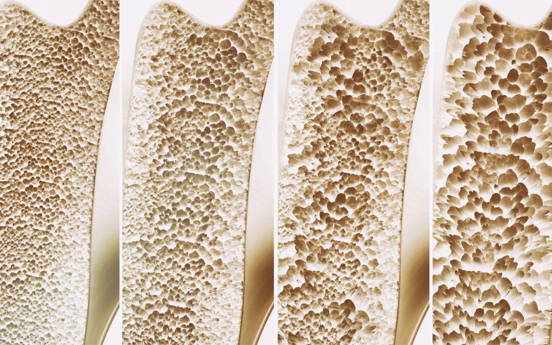 Osteoporose mit Vitalstoffen vorbeugen und behandeln